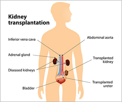 Kidney Transplant- Surgical Procedure